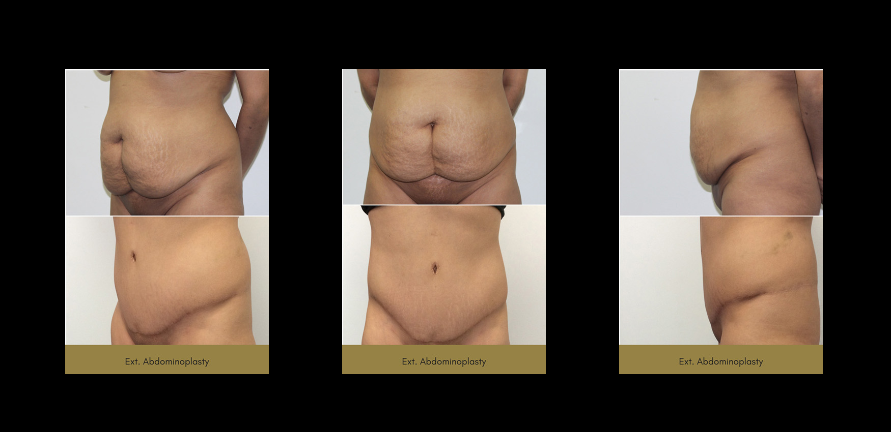 tummy tuck, revivology, before and afters