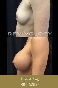 breast augmentation before and afters photos, left side view, plastic surgery in South Jordan, Utah