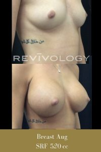 breast augmentation before and afters photos, right side view, plastic surgery breast implants in South Jordan, Utah