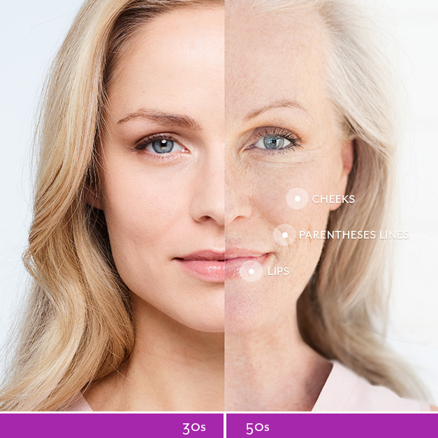 Juvederm Voluma - Dermal Fillers in South Jordan, Utah - Revivology