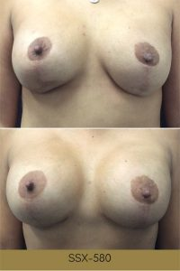 breast augmentation before and afters photos, front view, plastic surgery in South Jordan, Utah