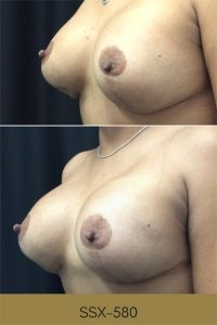 breast augmentation before and afters photos, side view, plastic surgery in South Jordan, Utah