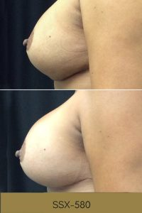 breast augmentation before and afters photos, profile view, plastic surgery in South Jordan, Utah