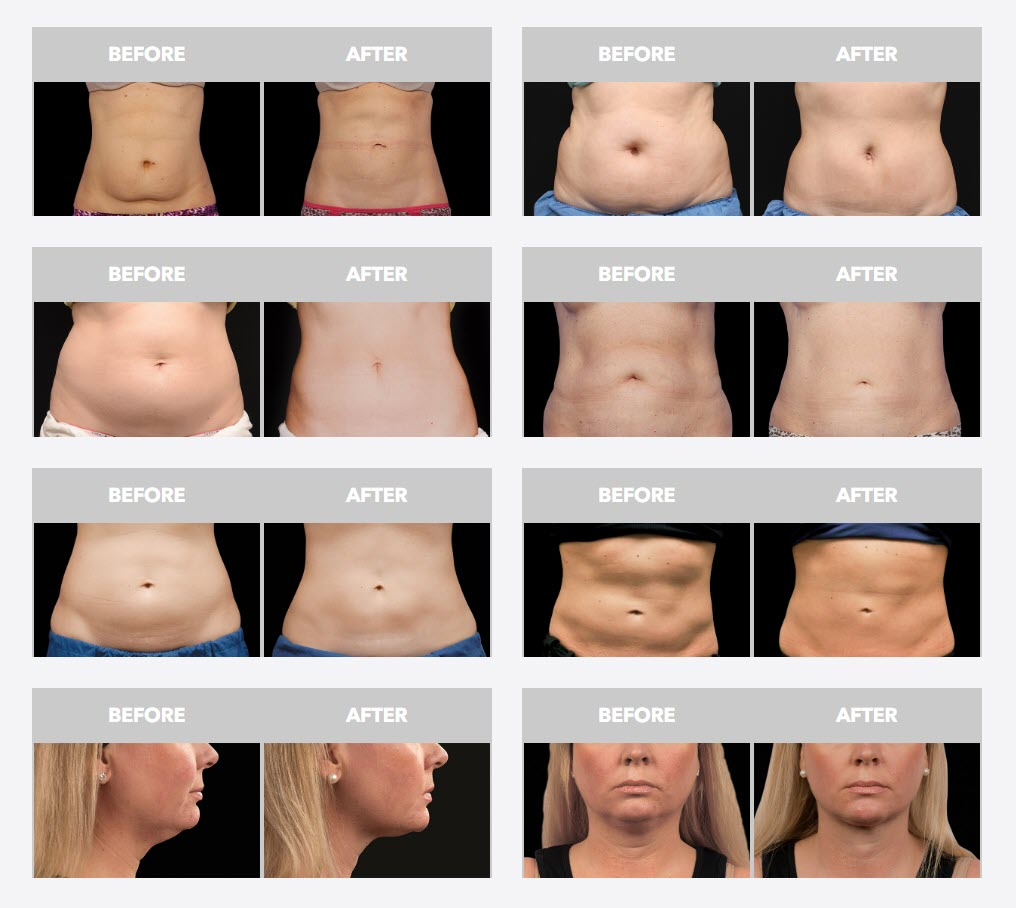 CoolSculpting in Utah - Before and After Photos from coolsculpting.com