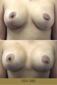 Before and After Photos - Breast Lift Reconstruction 3 - Revivology